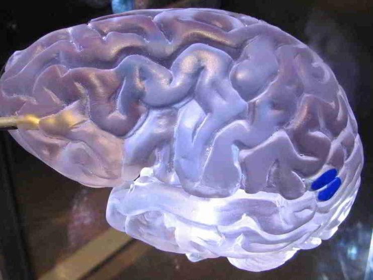 Aplicación exitosa de la Programación Neurolingüística